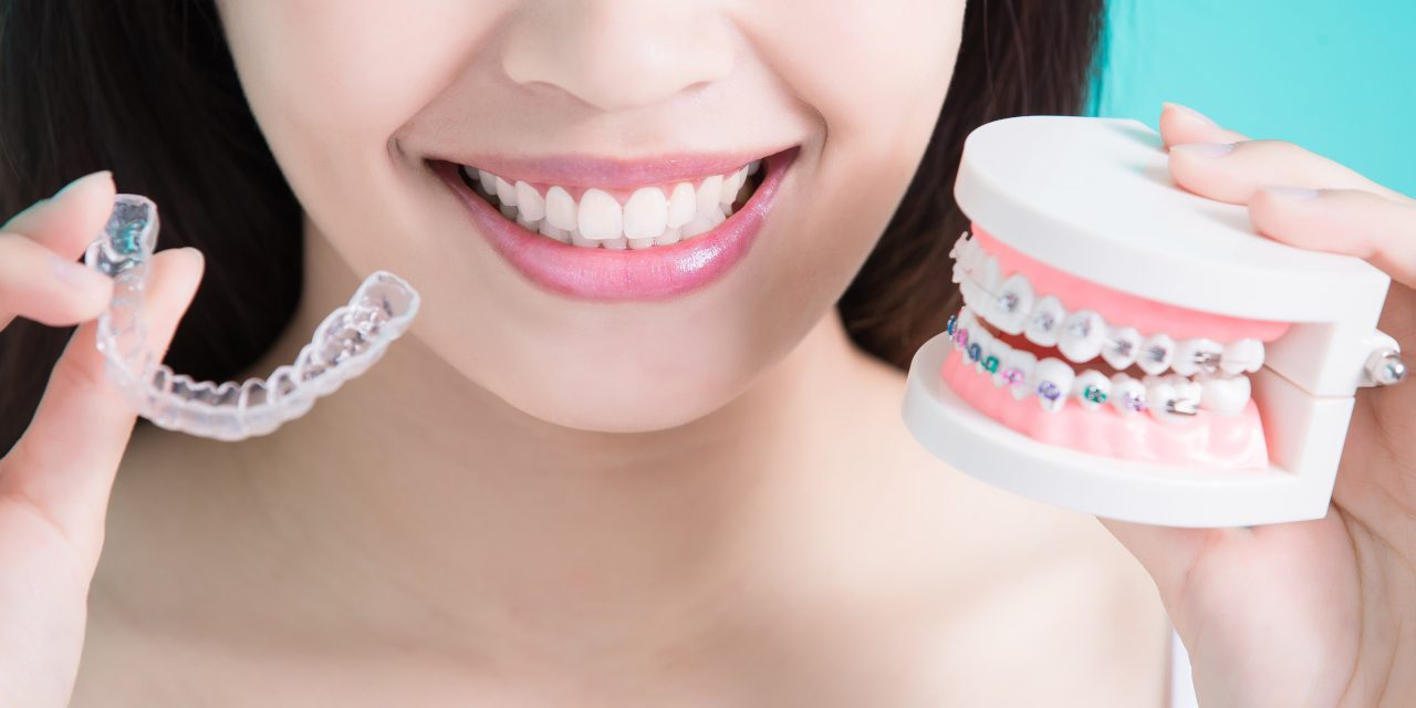 What to Expect From Invisalign Retainer Treatments?