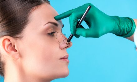 What You Should Know About Rhinoplasty Surgery