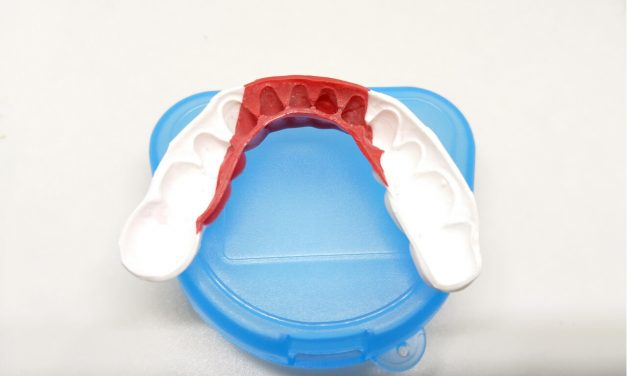 Quick and easy steps on how to mold a mouthguard